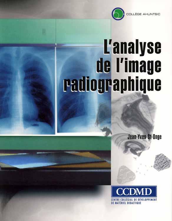 L'analyse de l'image radiographique
